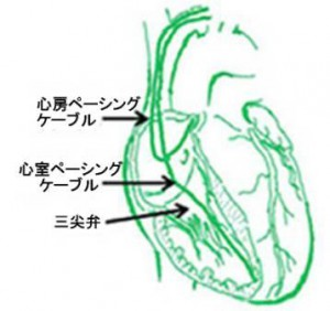 pacemaker TR b